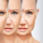 EFFECTS OF FACIAL SKIN TIGHTENING – HIFU TREATMENTS