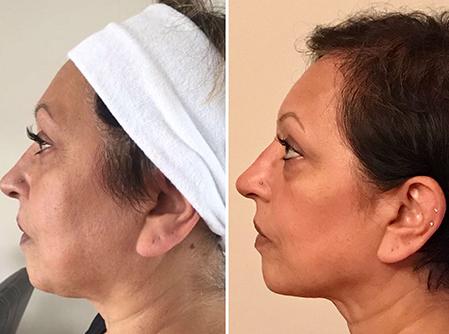 Skin Rejuvenation Clinic