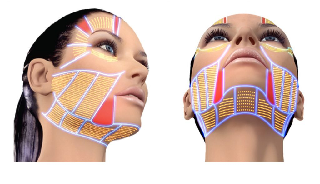 The Skin Rejuvenation Clinic experience, Part Two