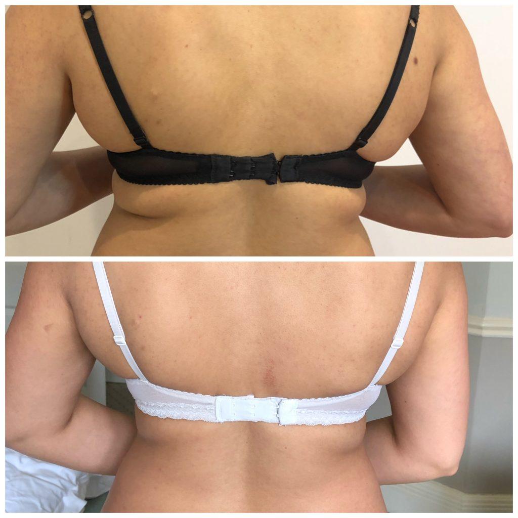 HIFU Body Lipolysis | Skin Rejuvenation Clinic | Non