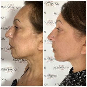 Skin Rejuvenation Clinic